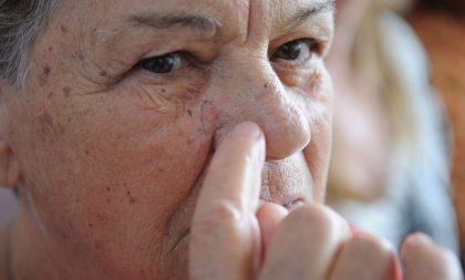 VITTA/VIDA&SAÚDE – Câncer de pele é tema da campanha Dezembro Laranja