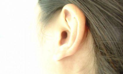 Tipos de malformações nas orelhas